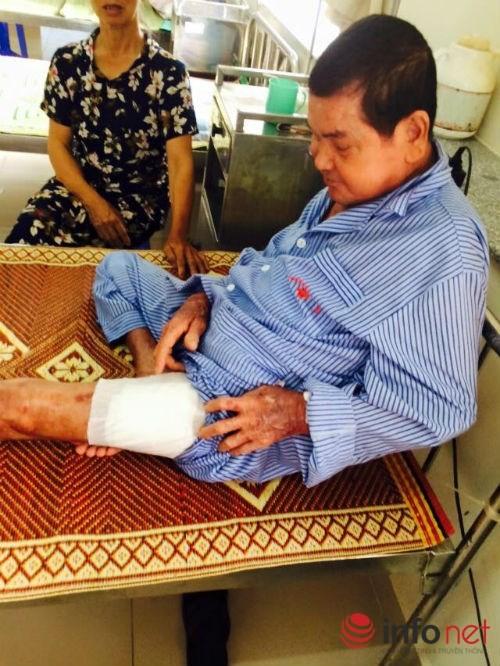 Một tuần bị nhọt, nhập viện bị cắt chân ngay lập tức - ảnh 2