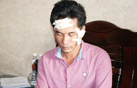 Tổ trưởng bảo vệ dân phố bị tố đánh rách mặt người dân - ảnh 1