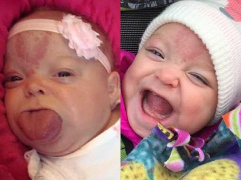 Cô bé lưỡi to đã có nụ cười đầu tiên - ảnh 1