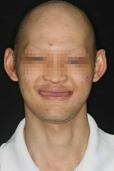 Phẫu thuật thay đổi cuộc đời chàng trai không răng - ảnh 2