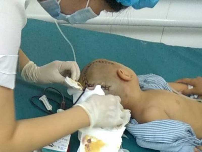 Bé 3 tuổi bị chấn thương sọ não ở trường mầm non - ảnh 1