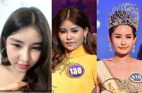 Hoa hậu Đại dương: Đã phẫu thuật, phải tước vương miện - ảnh 1