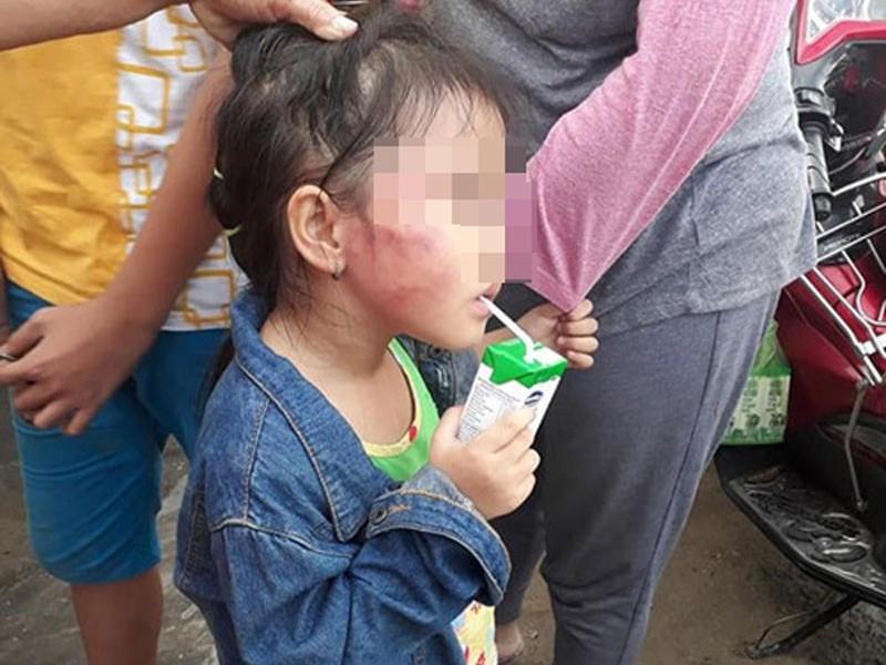 Bình Chánh: Cô giáo đánh trẻ nứt xương hàm - ảnh 1