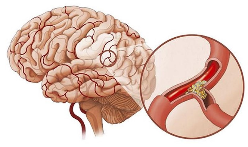 Dấu hiệu sớm của bệnh thiếu máu não - ảnh 1