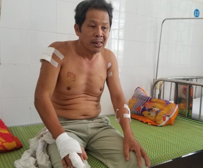 Công an điều tra vụ 3 cha con bị hàng xóm chém ở Quảng Ngãi  - ảnh 2
