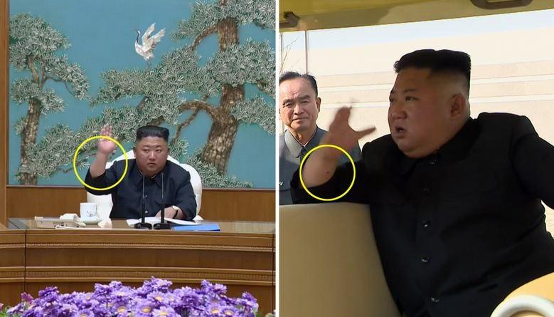 Báo Hàn: Ông Kim Jong-un có thể đã trải qua thủ thuật y tế - ảnh 2