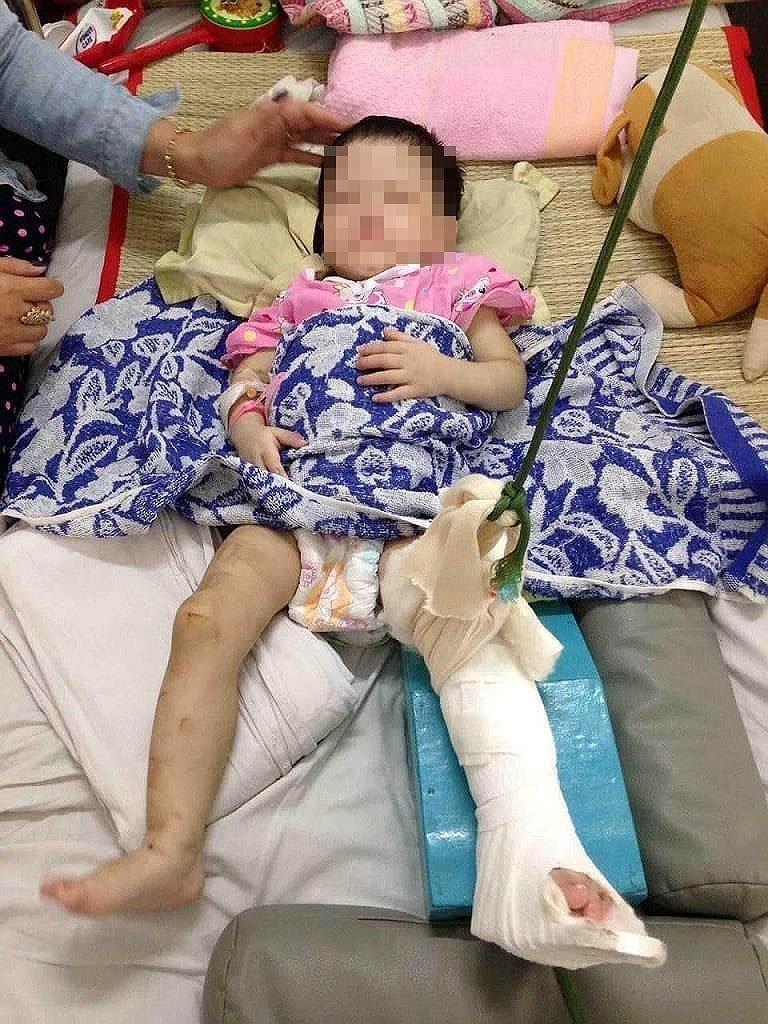 Bé gái bị mẹ nuôi đánh gãy chân: Nụ cười bé thơ và nỗi xót xa - ảnh 1