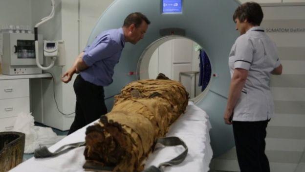 Nesyamun đang được quét tại một bệnh viện ở Leeds