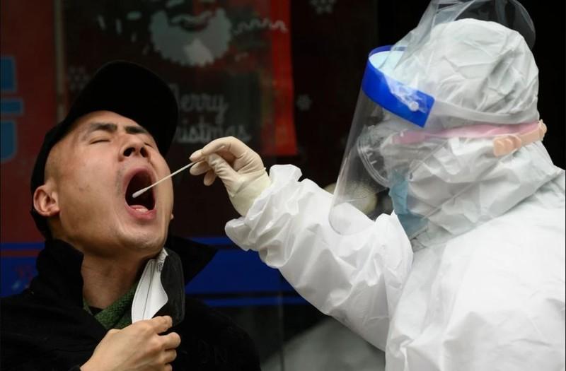 Virus gây COVID-19 còn tồn tại sâu trong phổi người khỏi bệnh - ảnh 2