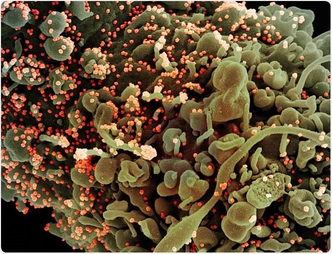 Xác định 2 kháng thể có thể dùng điều chế thuốc trị COVID-19 - ảnh 1
