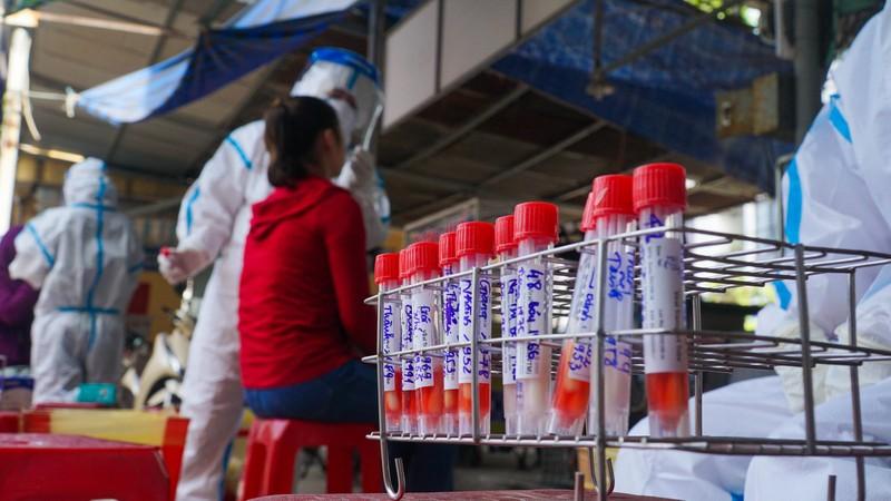 Đà Nẵng: Xét nghiệm hơn 500 tiểu thương liên quan BN 2989 - ảnh 8