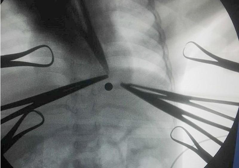 Bé trai 16 tháng tuổi bị viên bi xe đạp găm vào phổi - ảnh 1