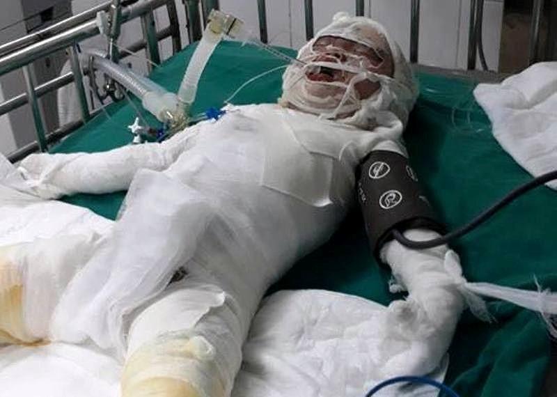Thương tâm: Bé gái tử vong do ngã vào hố vôi  - ảnh 2