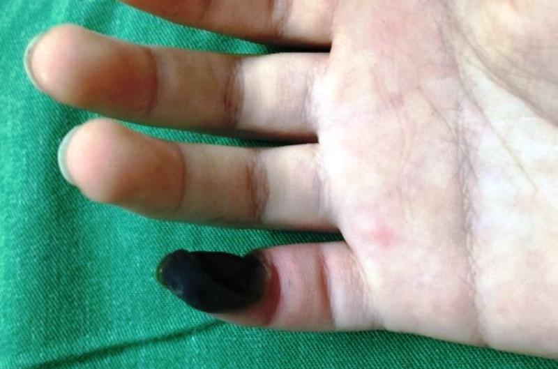 Hoại tử ngón tay sau khi bôi thuốc trị mụn cóc mua trên mạng - ảnh 1