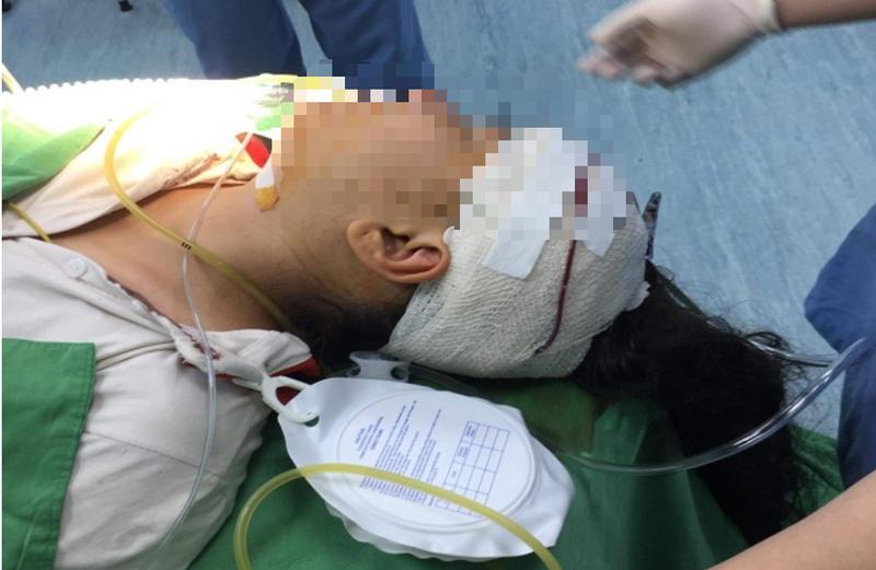 1 học sinh 10 tuổi bị cây kéo găm vào vùng đầu - ảnh 1