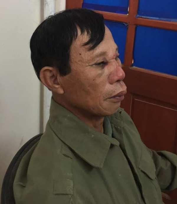 Bị hành hung, dí dao đe dọa vì can ngăn kẻ đánh vợ - ảnh 2