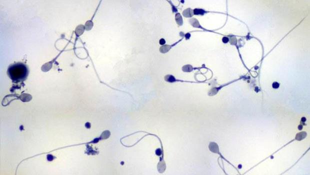Khám phá: Nuôi tinh trùng trong ống nghiệm - ảnh 1