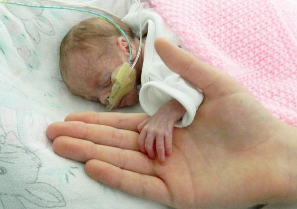 Sức sống kỳ diệu của em bé chào đời chỉ nặng 700 gam - ảnh 1