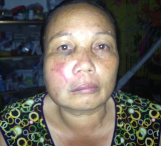Khuôn mặt của bà Sâm bị ông Phát đánh thâm đen, biến dạng. Ảnh gia đình cung cấp