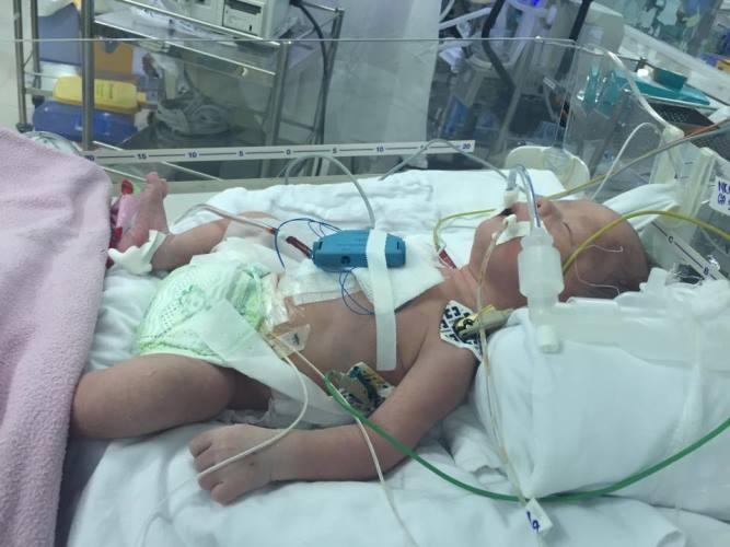 Cứu sống ngoạn mục bé mắc bệnh tim từ trong bụng mẹ - ảnh 3