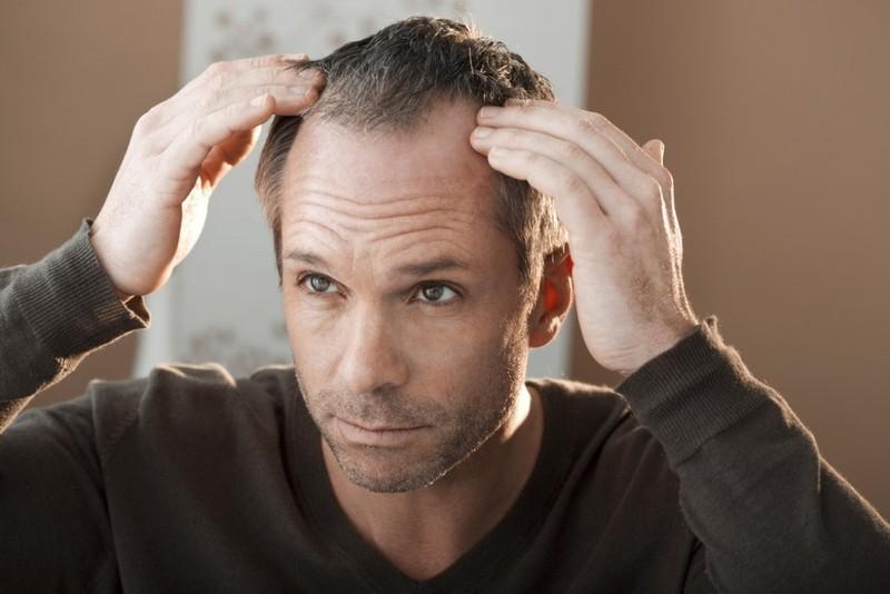 Tránh xa sai lầm khiến tóc ngày càng rụng - ảnh 2
