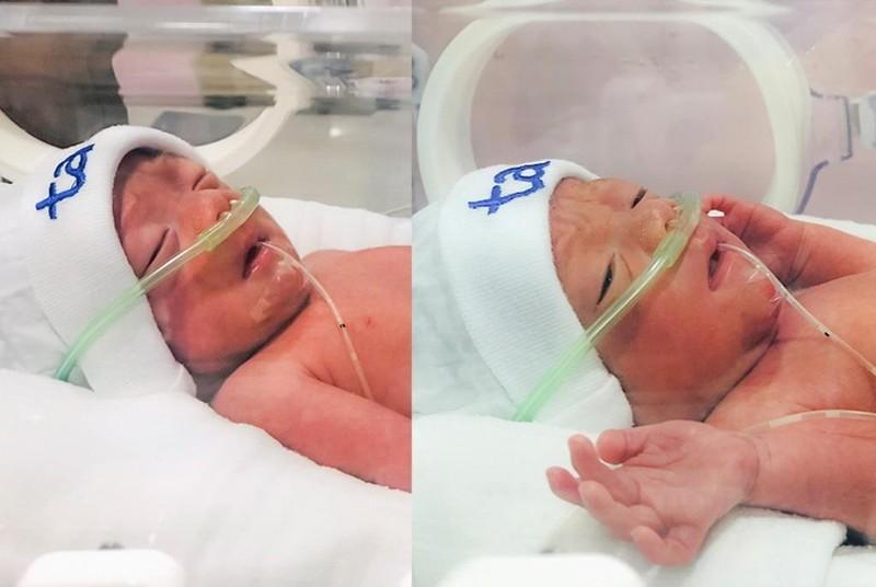 Bệnh viện Tâm Anh mổ cấp cứu thành công ca song thai 31 tuần   - ảnh 2