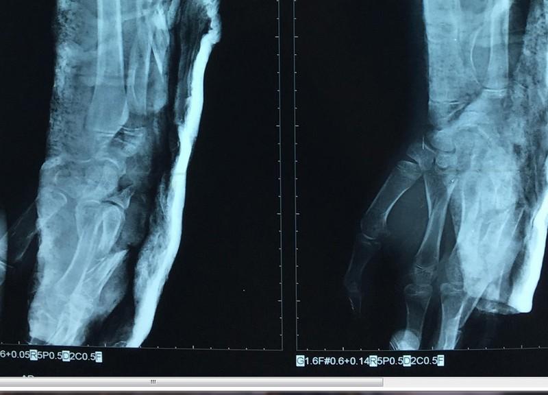 Cứu bệnh nhi bị chân vịt ghe chém gãy xương cánh tay  - ảnh 1