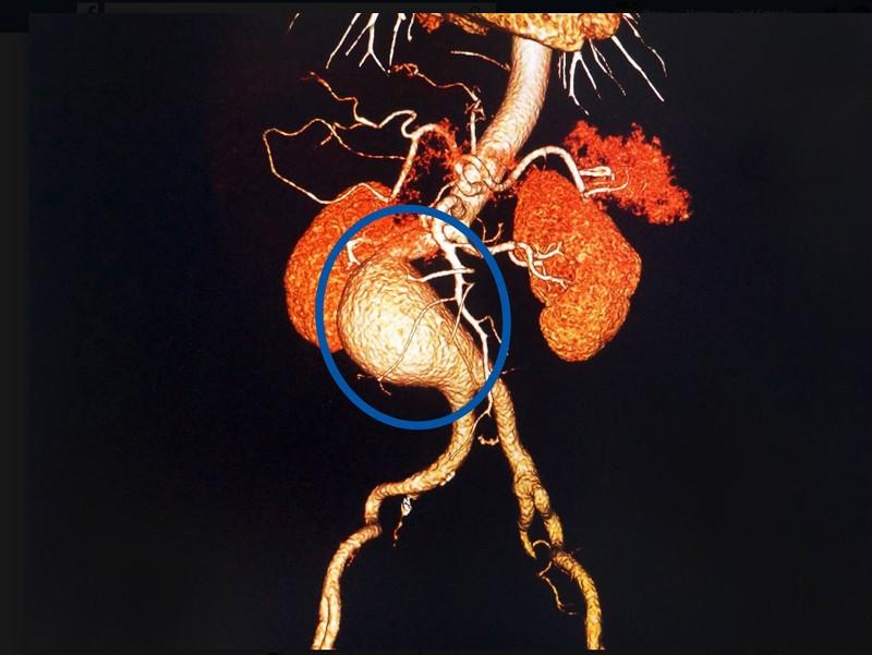 Có khối u vùng bụng, hãy nghĩ tới phình động mạch chủ - ảnh 1