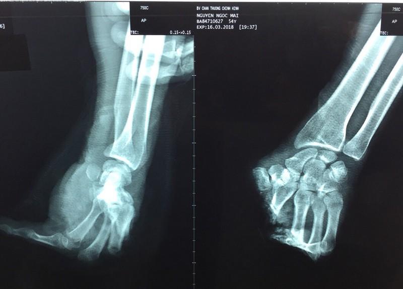 Lưỡi cưa máy cắt đứt lìa bàn tay trái - ảnh 1