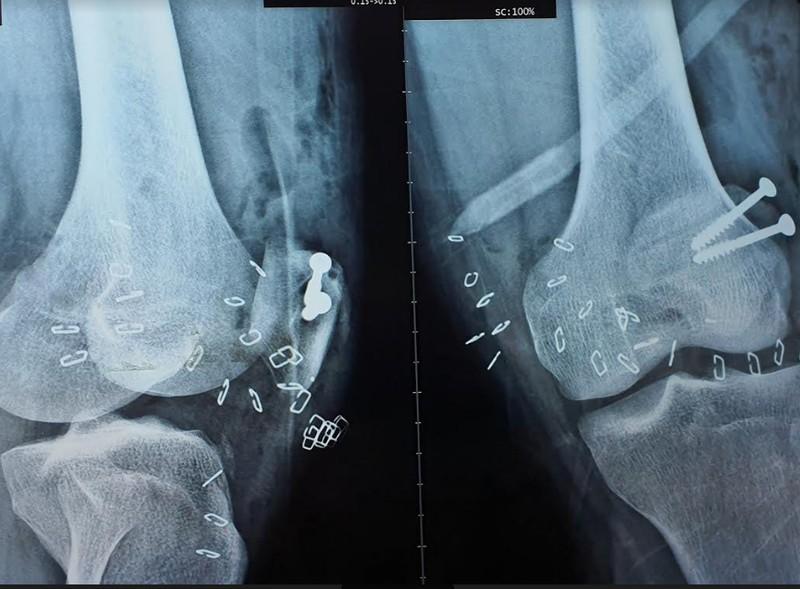 Người đàn ông bị chân vịt ca nô chém lộ xương chân - ảnh 1