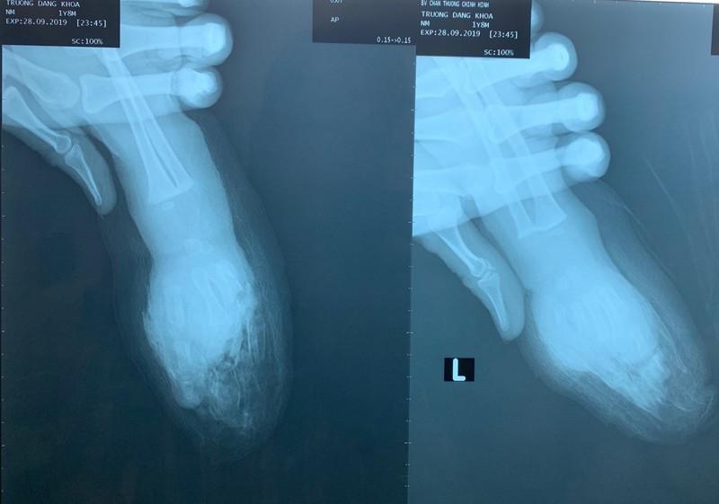 Người lớn sơ sẩy vài giây, bốn ngón tay bé một tuổi bị đứt lìa - ảnh 1