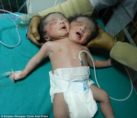 Các nhà khoa học cho biết đây là trường hợp song sinh dính liền rất hiếm, trẻ có hai đầu nhưng chỉ một thân nên giới khoa học không thể tách rời.