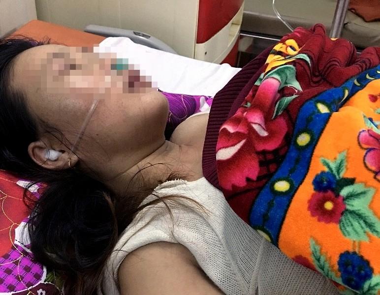 Chồng đánh vợ tổn thương sọ não, nhập viện cấp cứu - ảnh 1