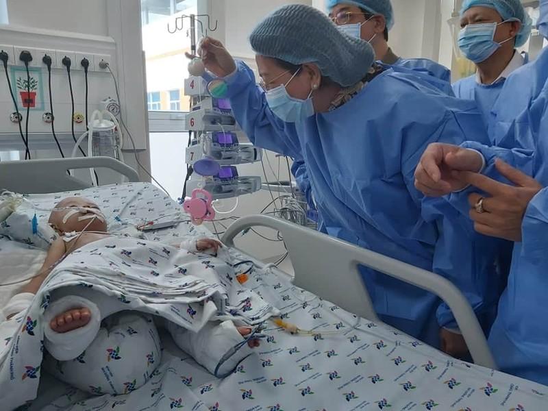 Phó Chủ tịch nước thăm hai bé song sinh Trúc Nhi – Diệu Nhi - ảnh 1