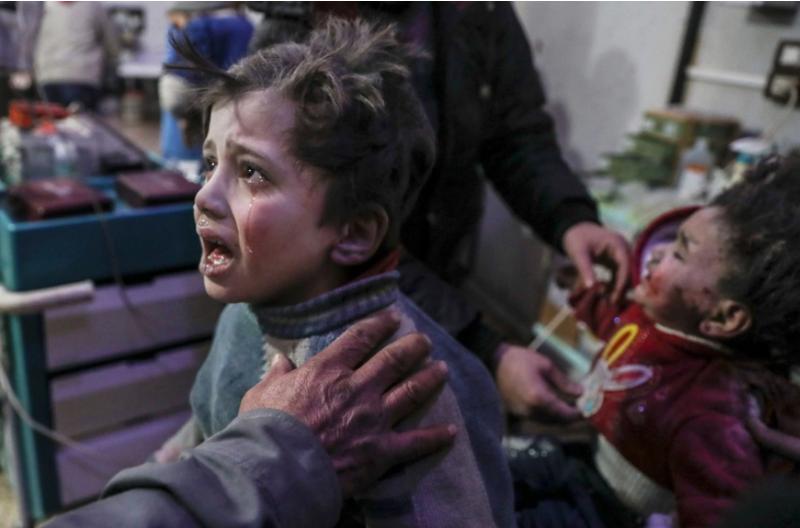 Trẻ em bị thương được đưa đến bệnh viện ở Douma, khu vực phe nổi dậy kiểm soát ở Đông Ghouta (Syria) ngày 19-2. Ảnh: EPA