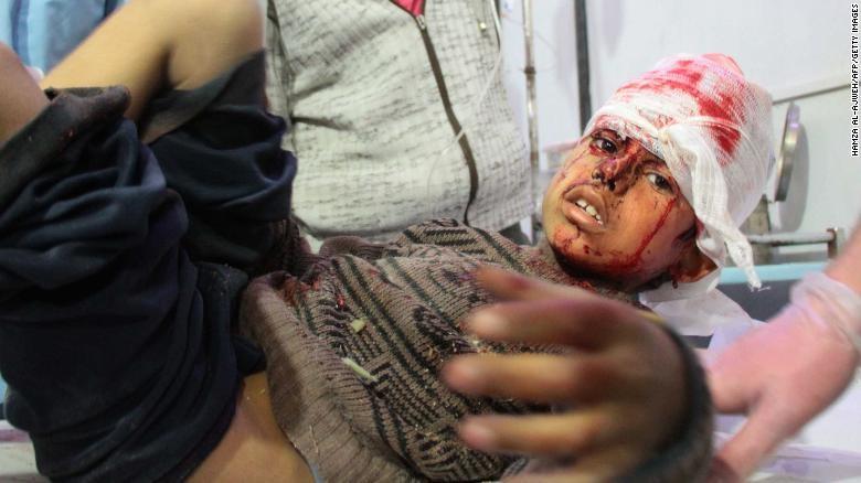 Trong số nạn nhân ở Đông Ghouta có rất nhiều trẻ em. Ảnh: CNN