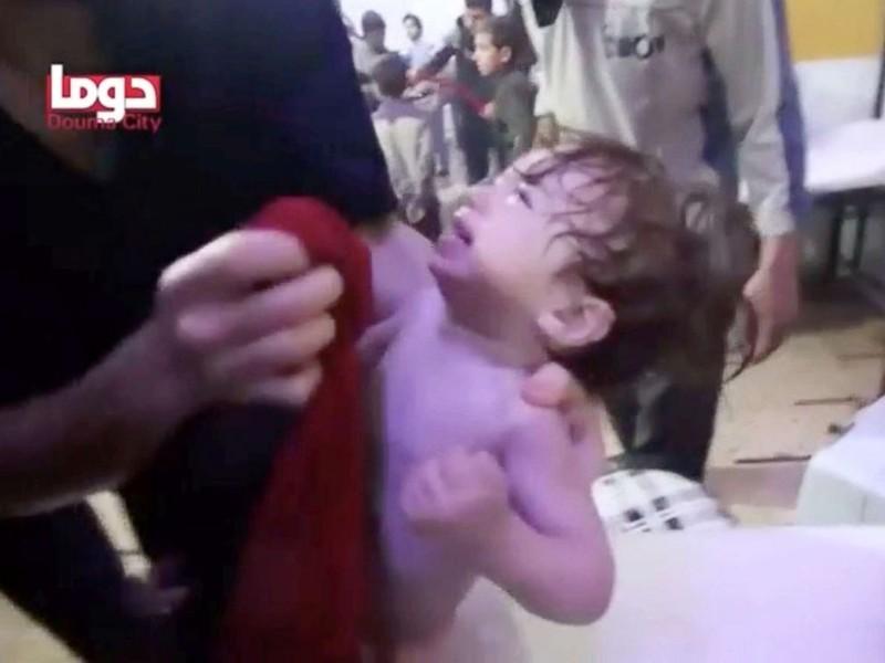 Hình ảnh được cho là nạn nhân trẻ em trong nghi án tấn công hóa học ở Douma tối 7-4. Ảnh: REUTERS