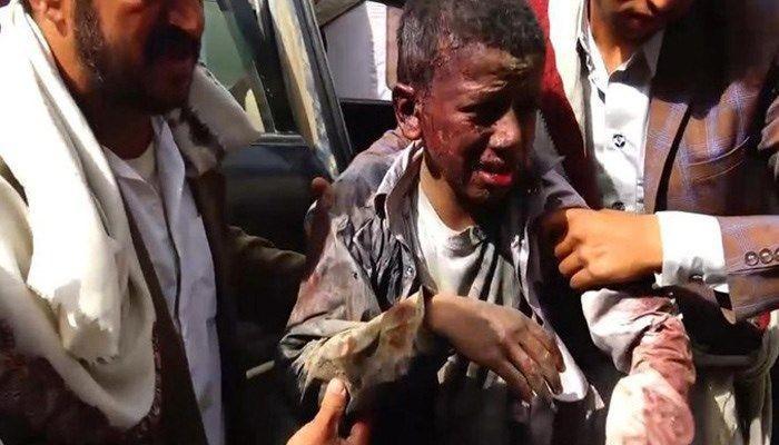 Trẻ em là một nạn nhân chính trong cuộc nội chiến 3 năm qua ở Yemen. Ảnh: AFP
