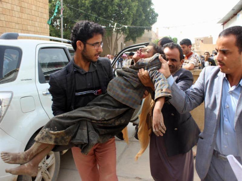 Nạn nhân trẻ em trong trận không kích liên quân Saudi Arabia dẫn đầu thực hiện sáng 9-8 ở Yemen. Ảnh: GETTY IMAGES