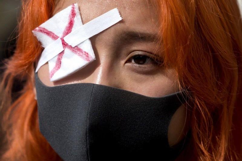 Xuống đường ở TP Vancouver, tỉnh British Columbia (Canada) ngày 17-8 ủng hộ người biểu tình Hong Kong. Ảnh: AP