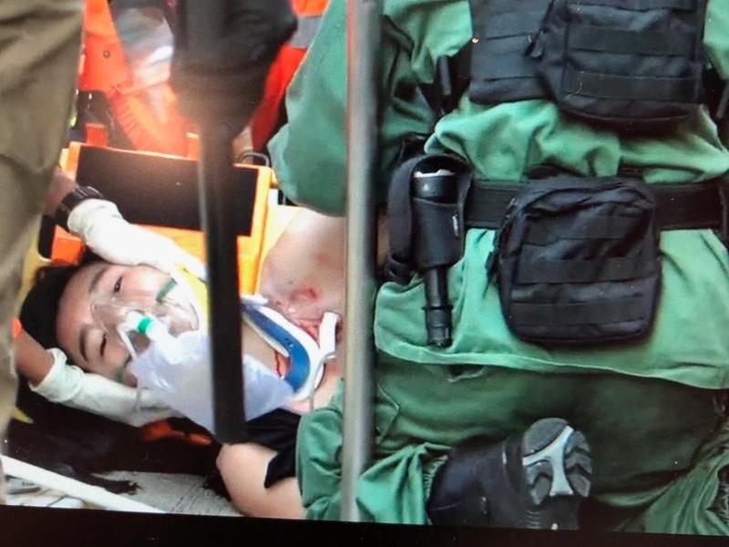 Sinh viên 18 tuổi được đưa đi cấp cứu trong tình trạng nguy kịch. Ảnh: SCMP