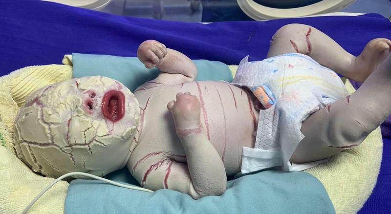 Quảng Ninh: Bé trai sinh non bị bệnh hiếm, vảy trắng toàn thân - ảnh 1