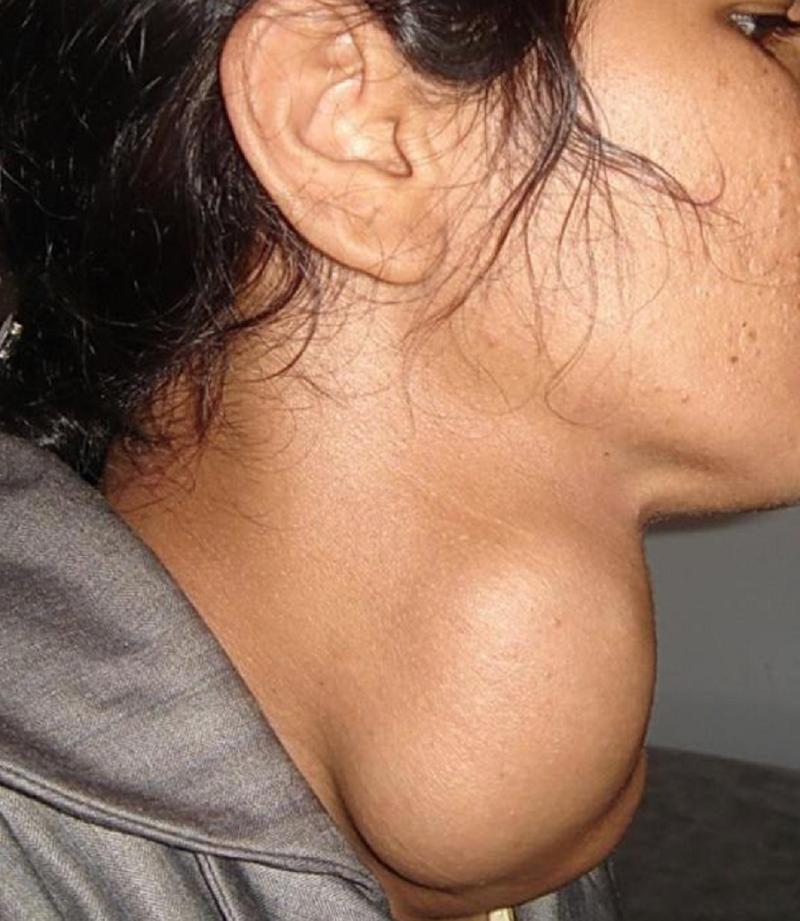 Bướu giáp ở phụ nữ phát triển gấp 5 lần nam giới - ảnh 1