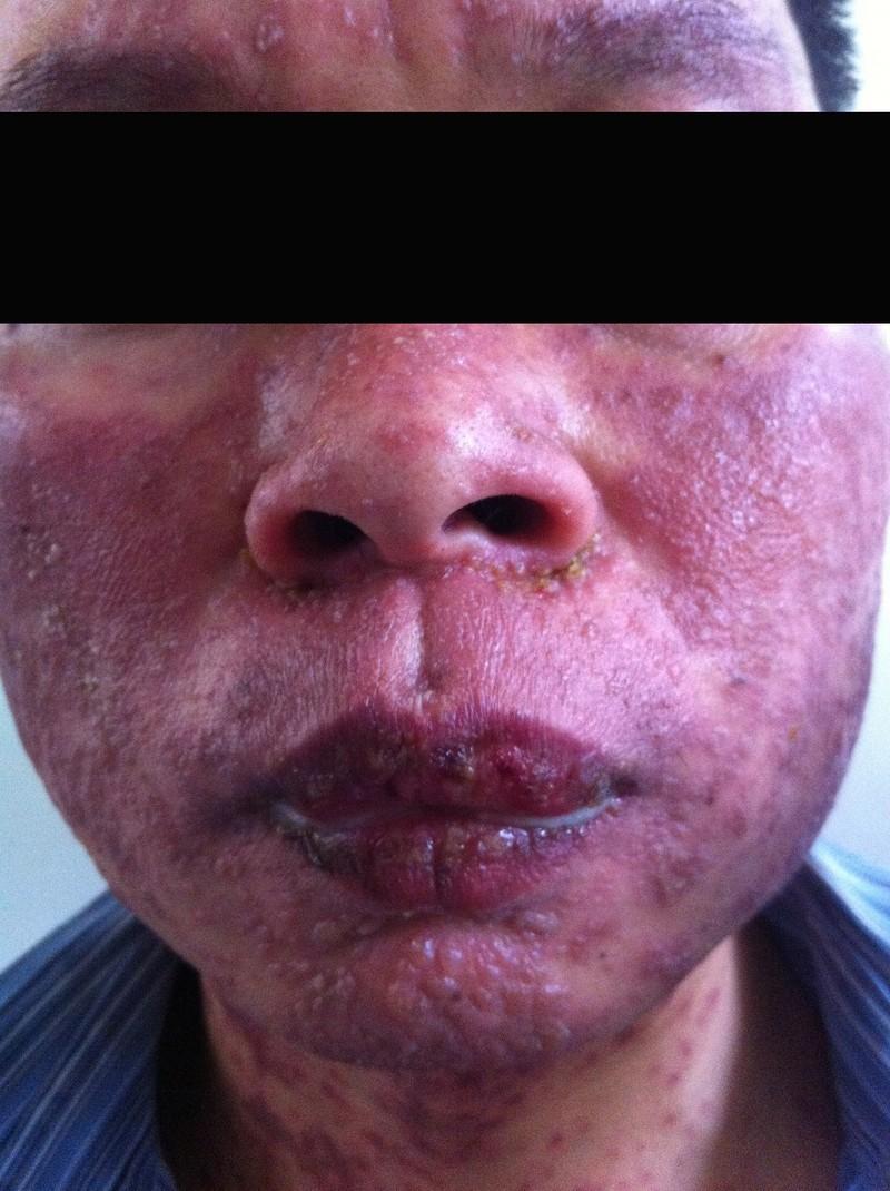 Viêm loét bộ phận sinh dục sau khi dùng thuốc trị gout - ảnh 1
