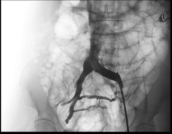 Điều trị suy tĩnh mạch chỉ bằng 1 mũi kim châm - ảnh 1