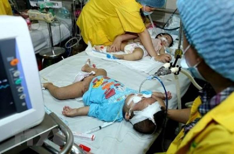Cặp song sinh 11 tháng tuổi nguy kịch vì mắc sởi - ảnh 1