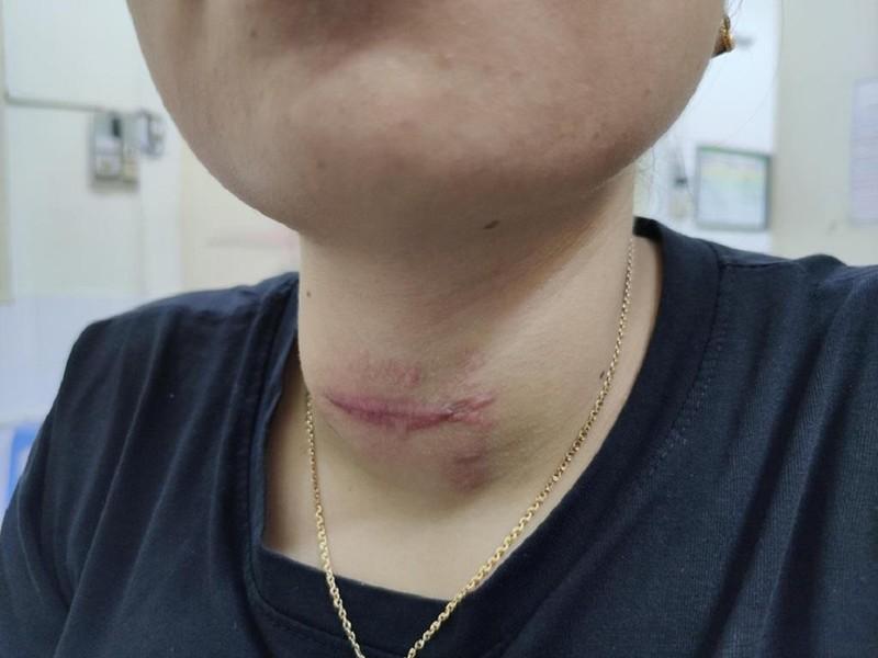 Nhờ thầy lang chữa bệnh, cô gái bị loét vùng cổ trầm trọng - ảnh 2