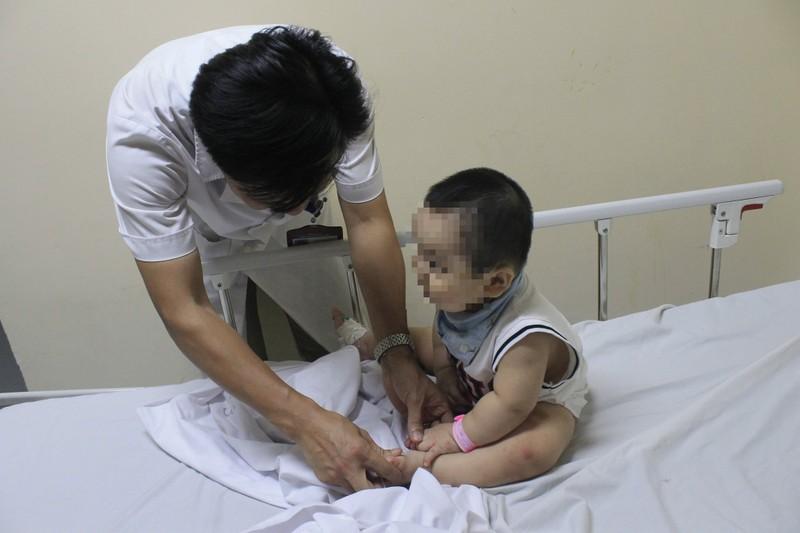 Nhiều trẻ bị bội nhiễm, chuyển biến nặng do tay chân miệng - ảnh 1