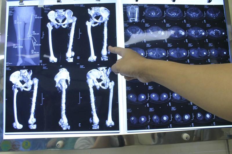 Ca mổ thay toàn bộ xương đùi thứ 2 tại Việt Nam - ảnh 2