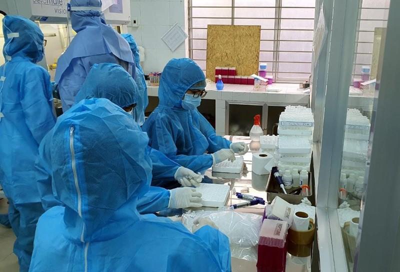 Dịch COVID-19: Việt Nam cán mốc 1 triệu xét nghiệm PCR - ảnh 1